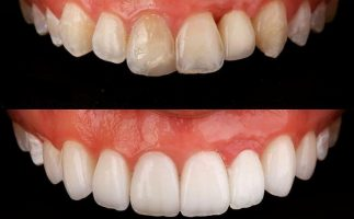 Tooth whitening and composite bonding before and after
