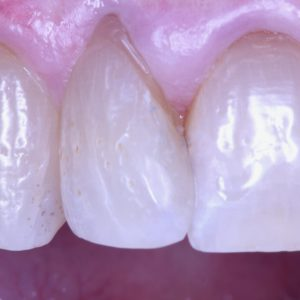 Front tooth after composite filling placement to improve appearance