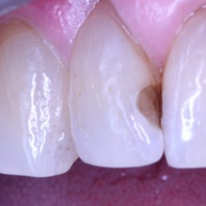 Front tooth before white filling placement