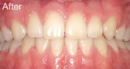 wigginton-dental-treatments-teeth-straightening-after
