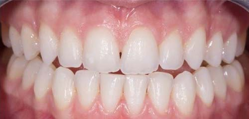 wigginton-dental-treatments-tooth-whitening-after