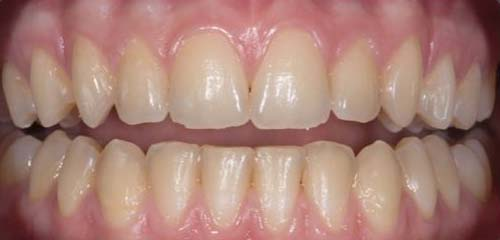 wigginton-dental-treatments-tooth-whitening-before